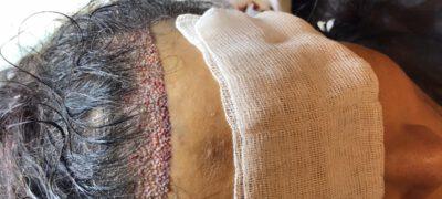 Pmedac - Saç Ekimi (1)